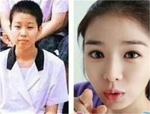 韩国潜力女星修脸开运 刘仁娜变脸前惊吓指数百分百